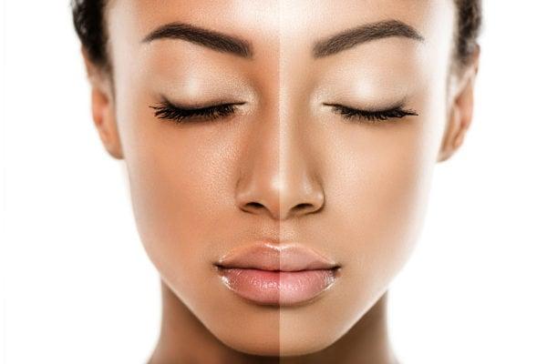 Skin Lightening Image